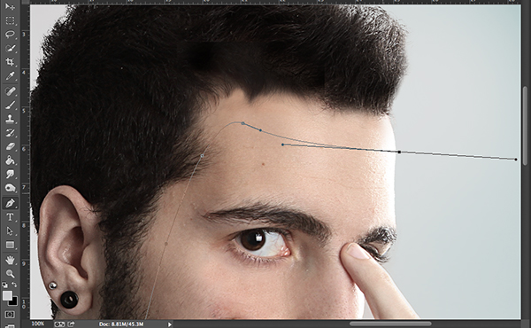 3-Step2-Forehead